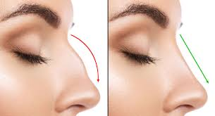 Rhinoplasty – Nose Reshaping Surgery Side Effects and Risks