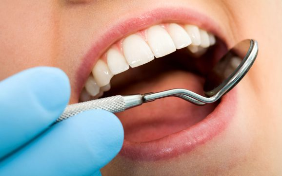 Family dentistry services