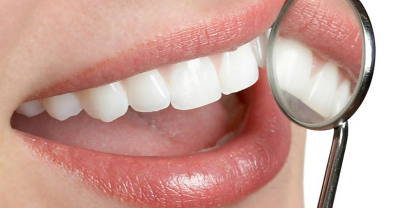 Cosmetic Dentistry – Aesthetic Components of a Smile Makeover