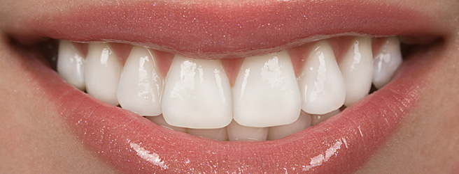 Porcelain Veneers – Its Uses and Procedure Involved
