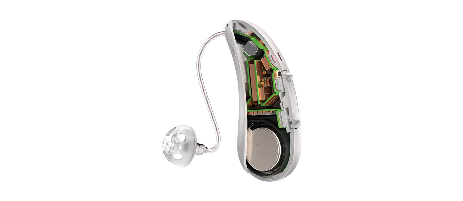 What To Look For When Buying Hearing Aids In Mortdale?