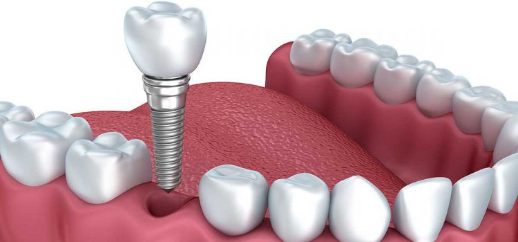 Understand the advantages of ceramic dental implants for your treatment!