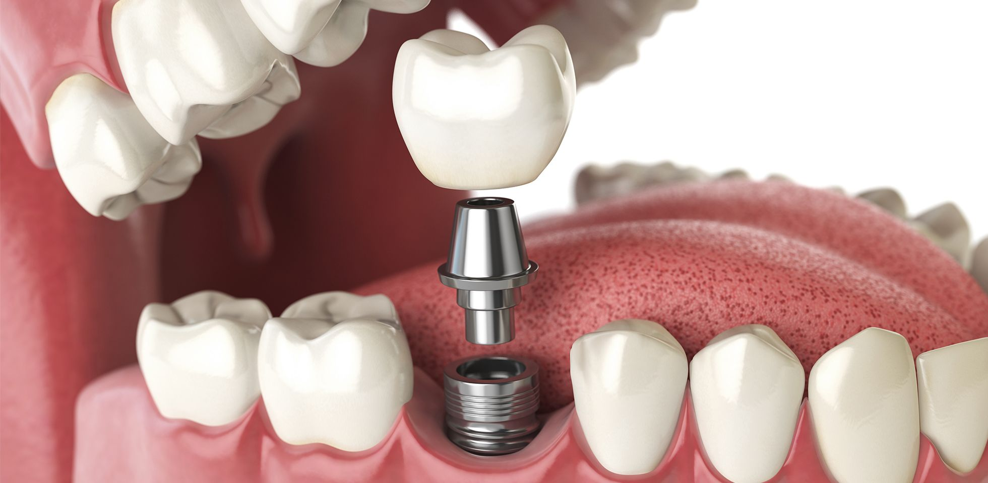 Here are the advantages of why ceramic best dental implants liverpool are the chosen option for multiple implant surgeons
