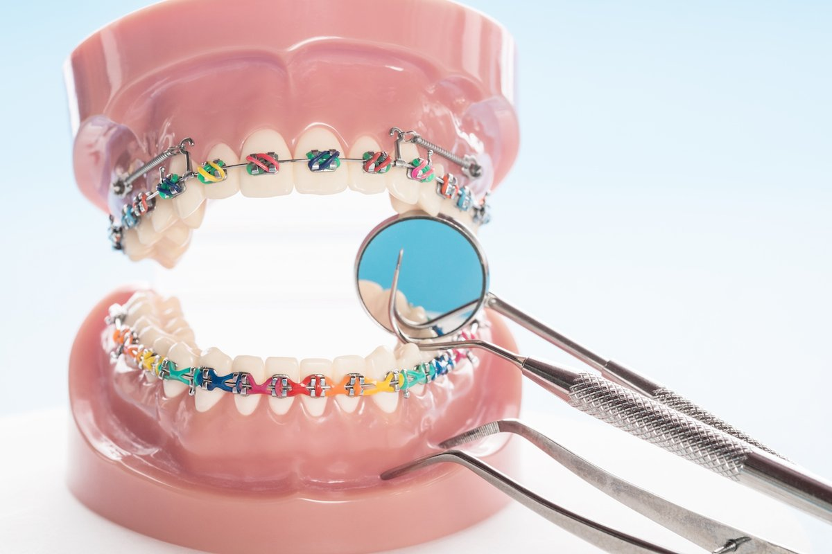 orthodontics guildford, Emergency Dentist Guildford