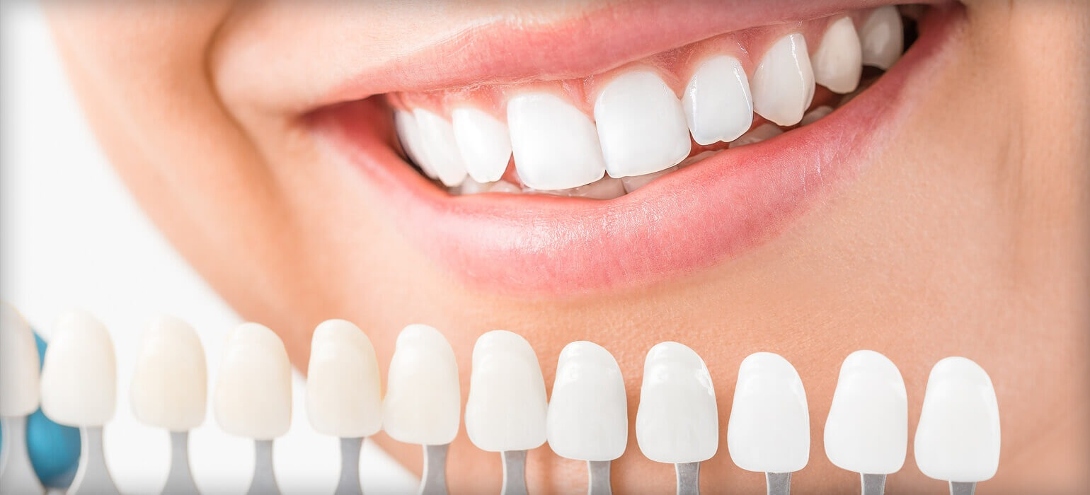 cosmetic dentist Coogee, dental clinic little bay